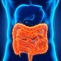Lower Gastrointestinal Tract – Bowel Diseases